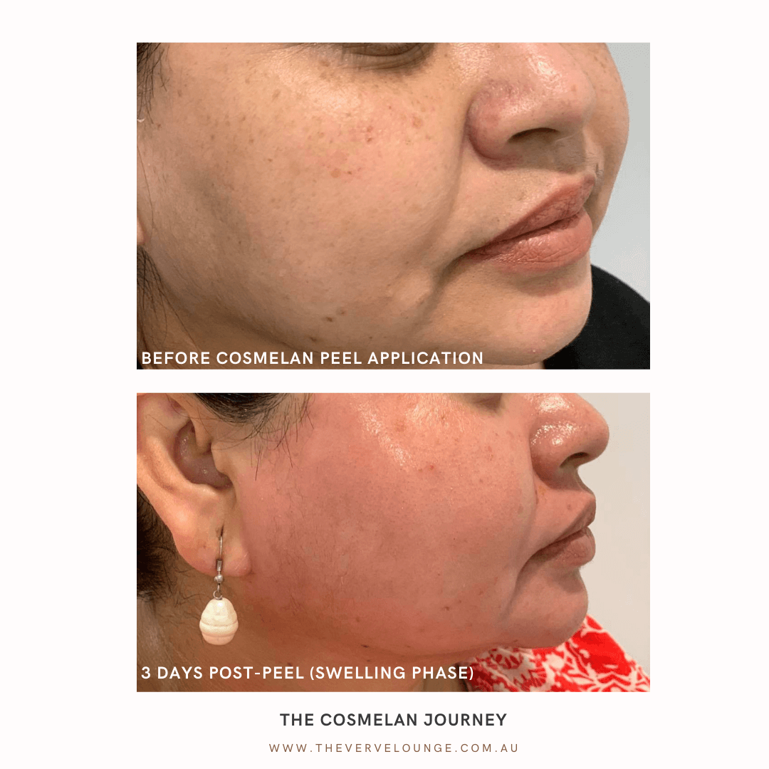 cosmelan-before and-after-1